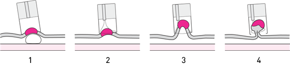 Miért volt növekedés az orrban? A kezelés fő okai és módszerei