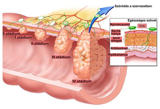 a vastagbél túlélési arányának metasztatikus rákja