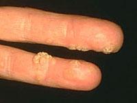 hogy néz ki a korbács a székben papillomavírus nő és terhesség