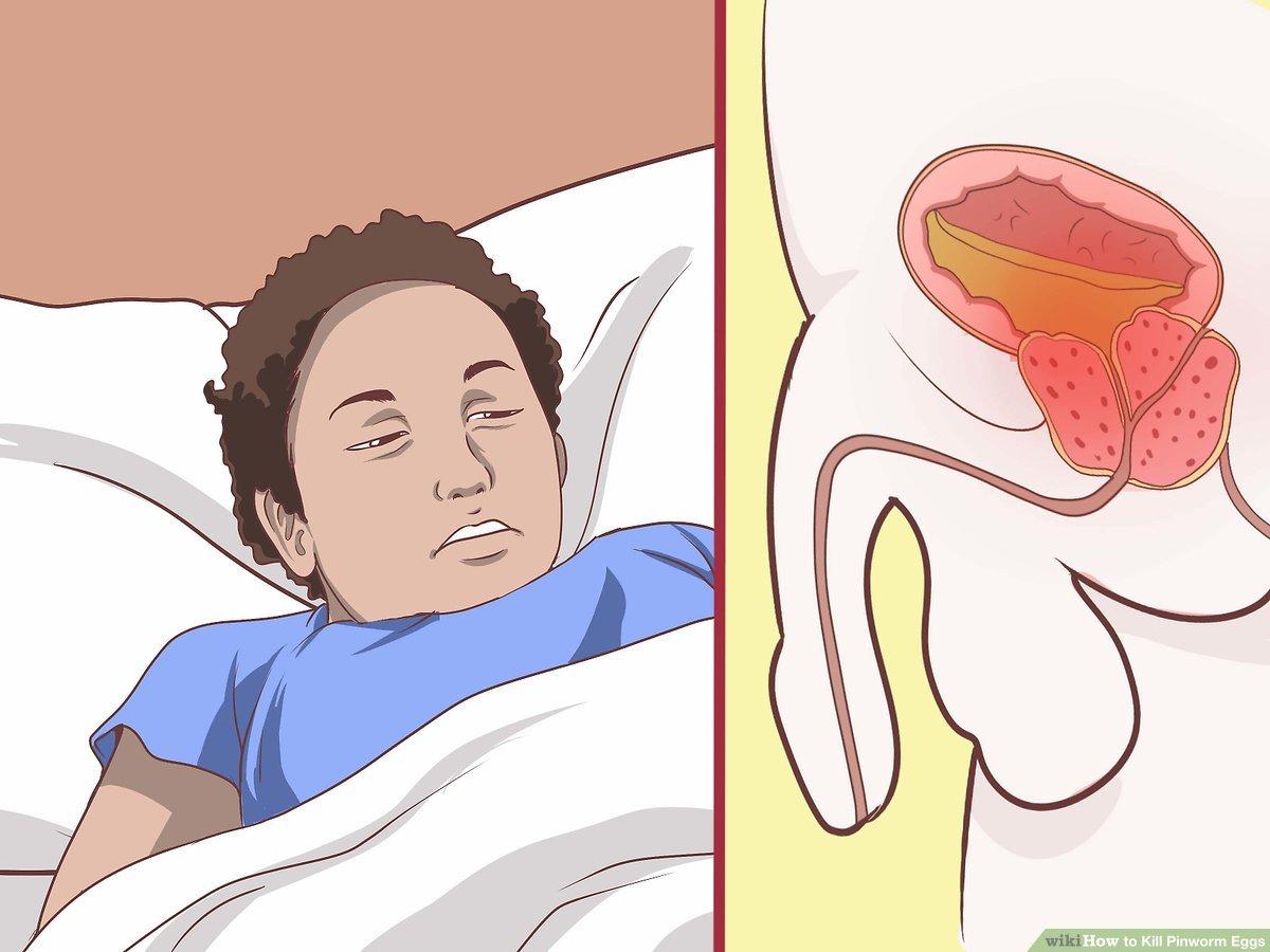 Pinworms fertőzés