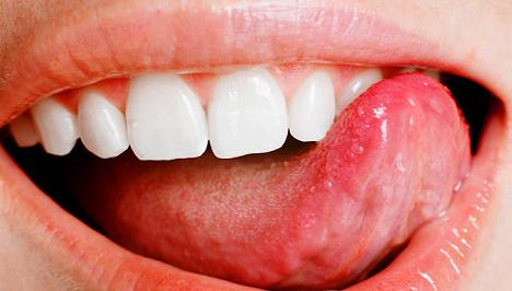 Mikor gyanakodjunk szájüregi rákra? - HáziPatika