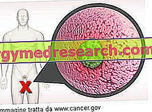 rák agresszív sugárzás