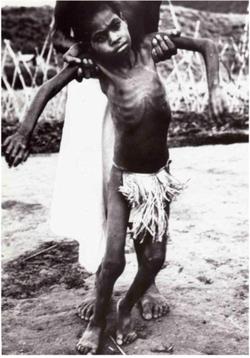 törzsek által okozott emberi betegségek)