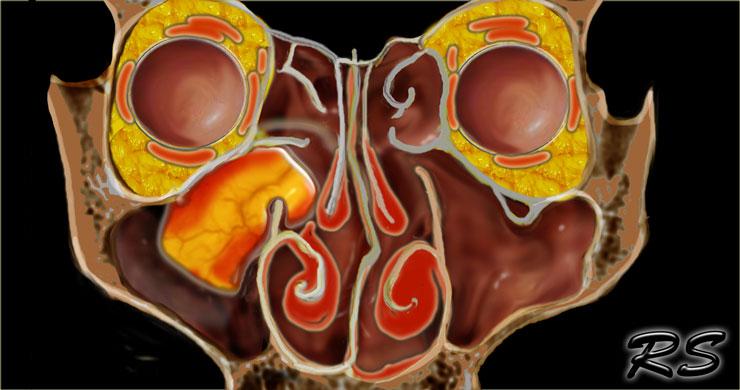 Mi az orrüreg és a paranáthális sinus rák?