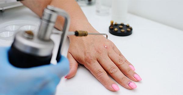Az emberi paraziták kezelésének megelőzése - ifal60.hu