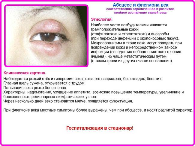 szemölcsök a végbél diagnózisában)