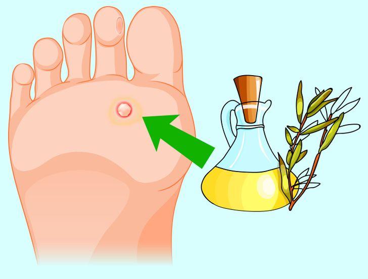 gyógyítja a papilloma eltávolítását