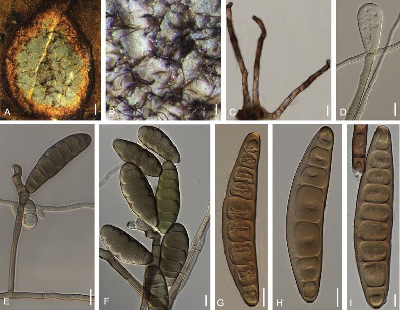 helicintosporium zeicola