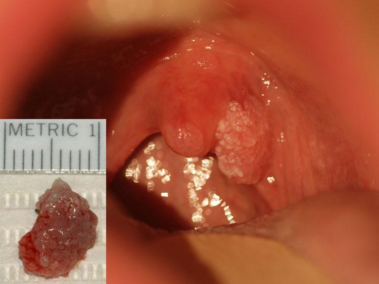 hpv na uvula papillóma hamu kezelése