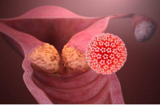 hpv impfung gegen welche viren)