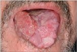 nyelvdaganat papilloma vírus