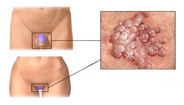 condyloma és kezelése