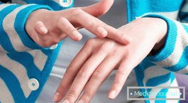 a papilloma parazita a testben)