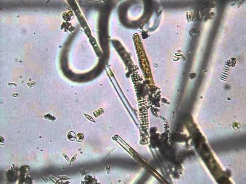 Paraziták protozoa metazoák - ifal60.hu