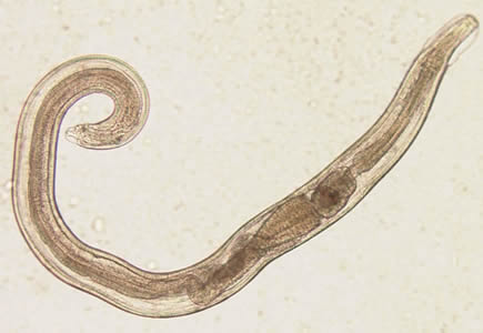enterobius vermicularis bulasma yolu