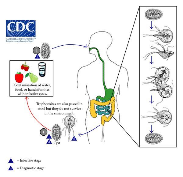giardiasis cdc