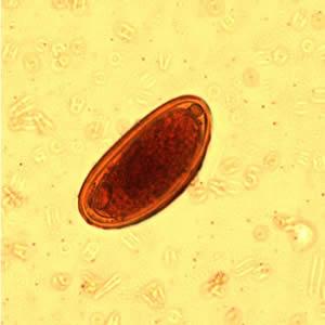 Enterobiosis vermicularis mi ez A Magyarországon előforduló féregfertőzések