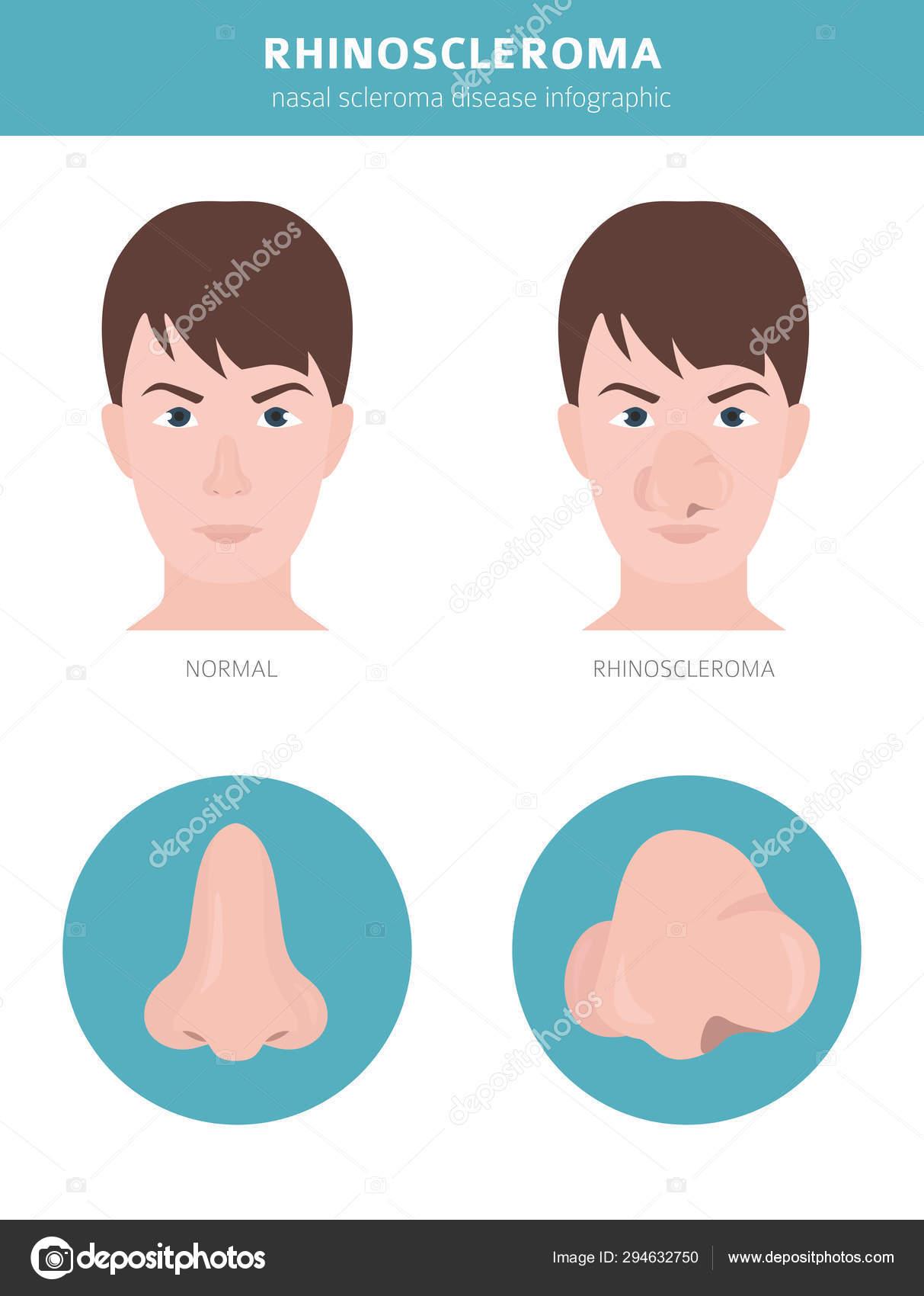 Helmint megelőző kezelés, Helmint adagoló kezelés