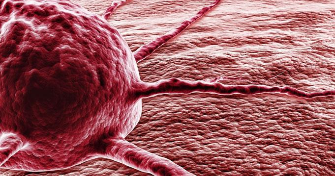 szarkóma rákos sejtek giardia és férgek gyermekek számára