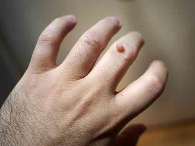 A hpv szemölcsöket okoz a kezeken condyloma vs molluscum