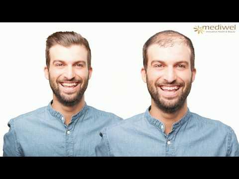 alopecia férgek kezelése