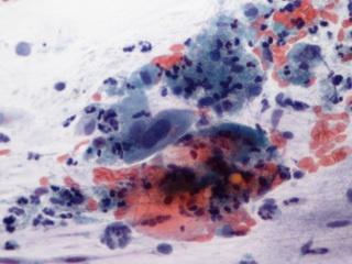 az emberi papilloma vírus tünetei a zenát kódolják