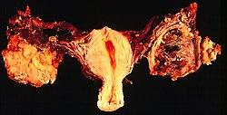 az endometrium rákra vonatkozó irányelvei)