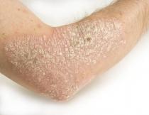 az átvitt humán papillomavírus