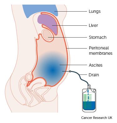 hashártya rák ascites