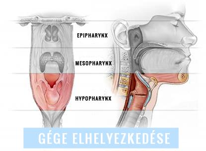 gége papillomatosis és tracheostomia)