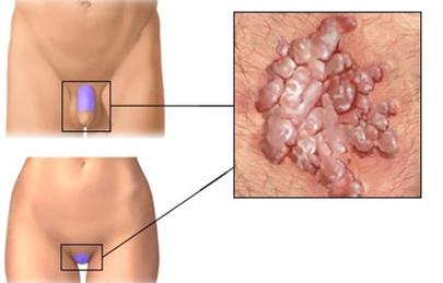 papillómák eltávolítása a nemi szerveken