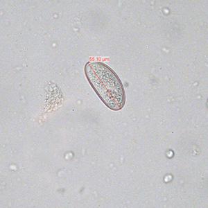 enterobius vermicularis objawy végbélrák természetes kezelése