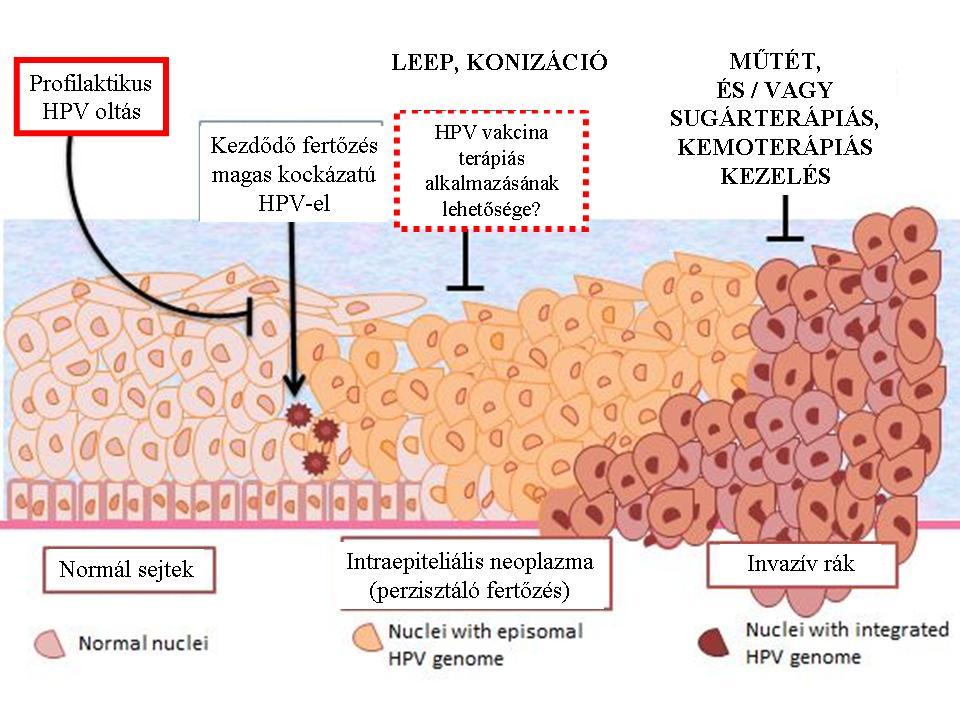 magas kockázatú pozitív papilloma vírus