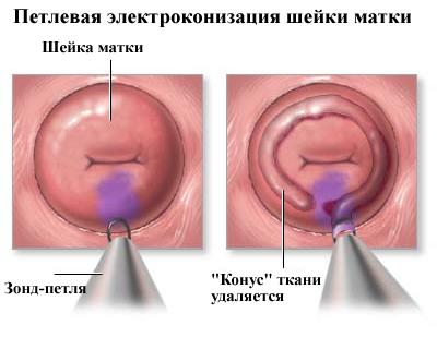 hpv-vel kapcsolatos nyaki rák)