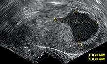 tiszta sejt endometrium rák