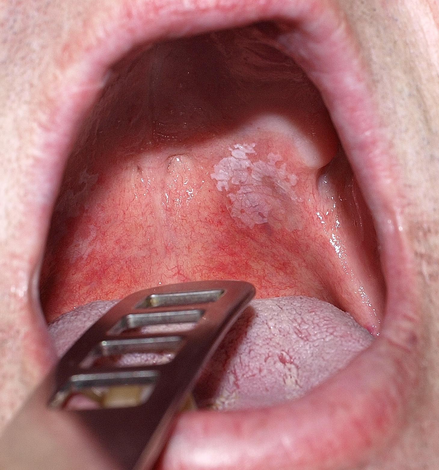 hogy néz ki az ajkak papilloma)