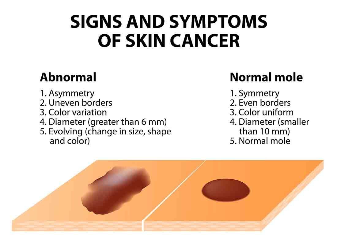 a bőrrák várható élettartama)