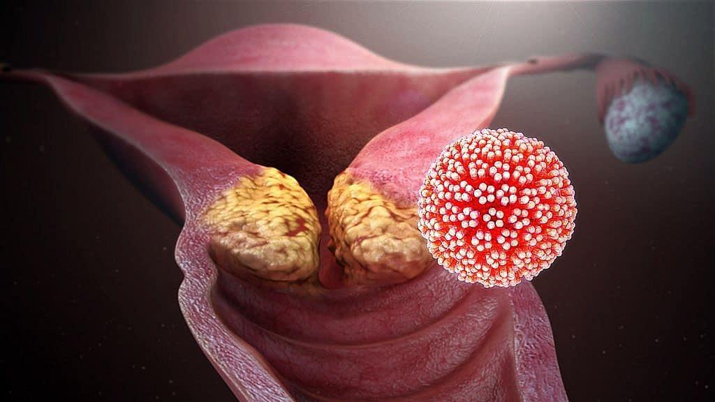 papilloma vírus negatív