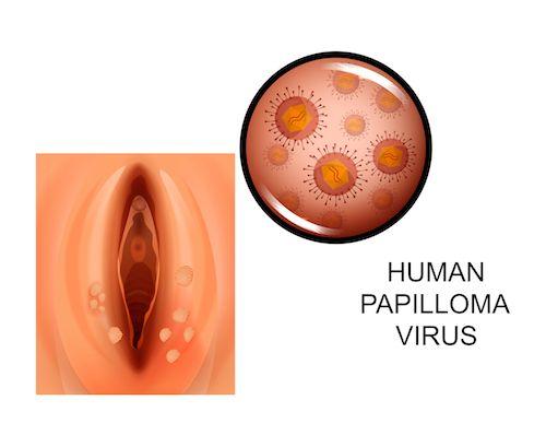 Fénykép Papilloma vírus. HPV # | fotóbank Fotky&Foto