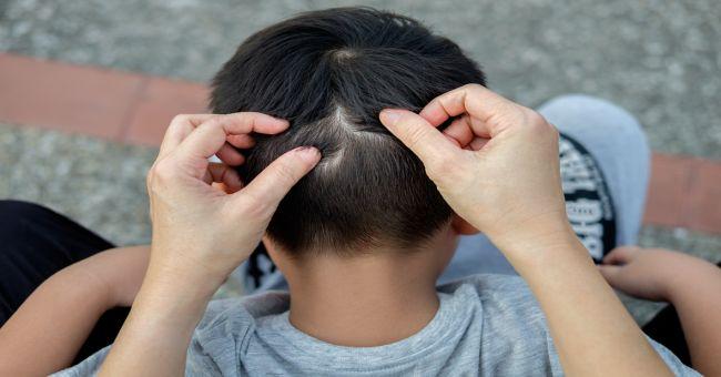 férgek a 2 éves gyermekek kezelésében