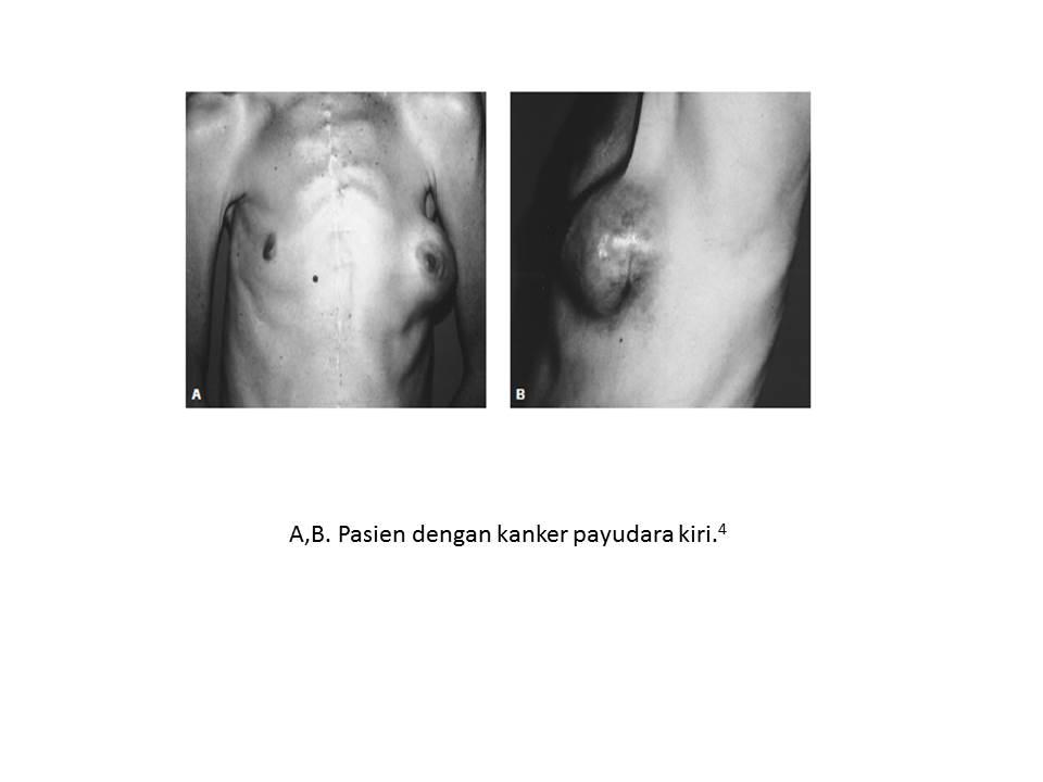 intraductalis papilloma amerikai ráktársaság