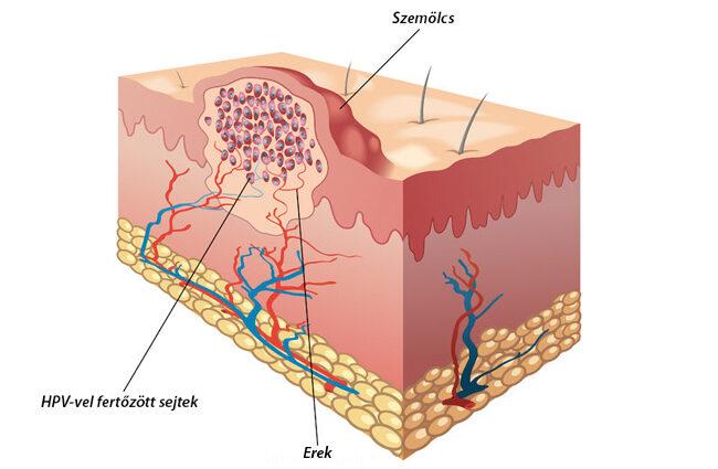 emberi papillomavírus szerkezete)