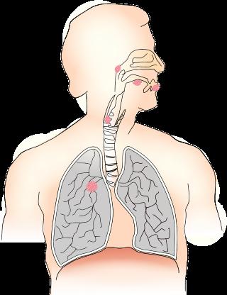 metasztatikus nyaki rák