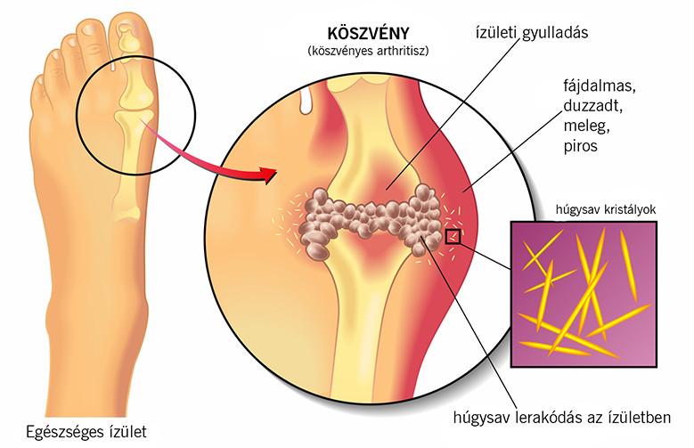 A helmintikus fertőzések megelőzése az ápolás során