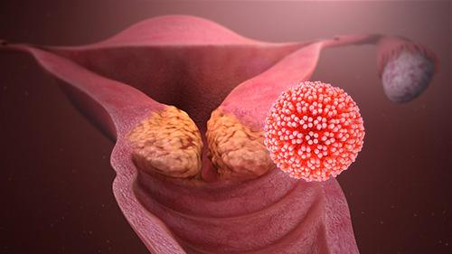 hpv viren und schwanger werden)