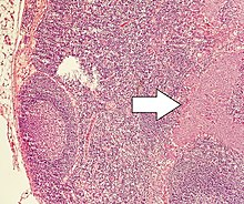 neuroendokrin rák nz lárva nekrózis