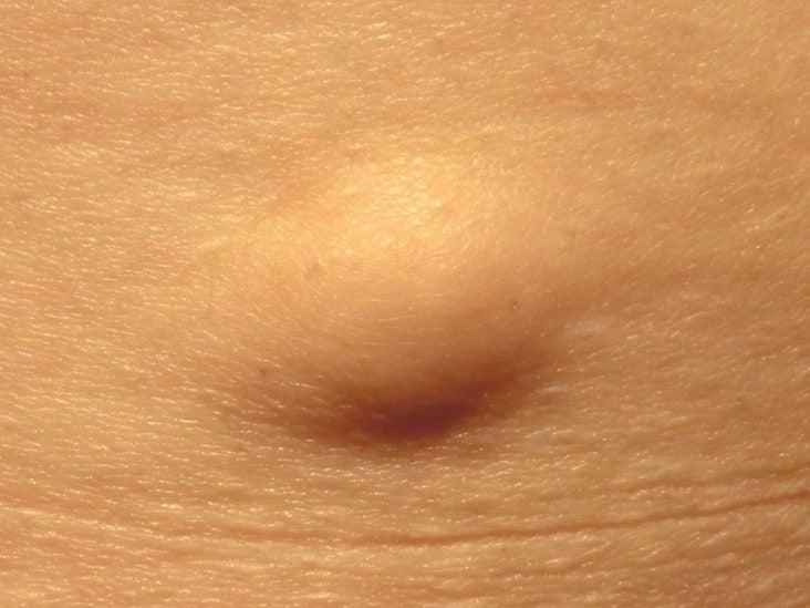 erős bőr parazitái intézkedések a parazita fertőzések megelőzésére