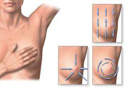 emlőmirigy rák tünetei