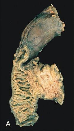 endokrin rák