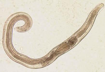 enterobius vermicularis fertőzés